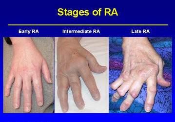 12+ Penyebab dan tanda tanda penyakit artritis reumatoid ideas